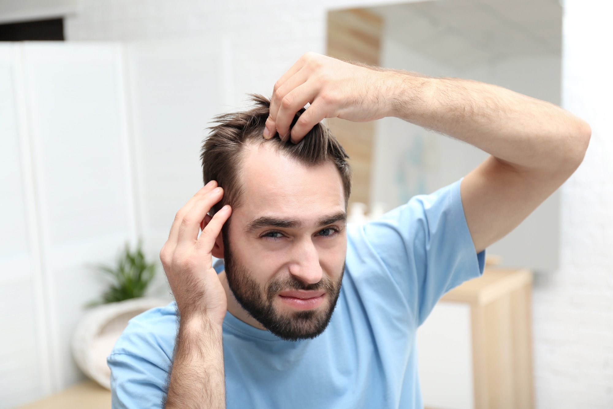Receding Hairline: What To Do When You Are Losing Hair | X
